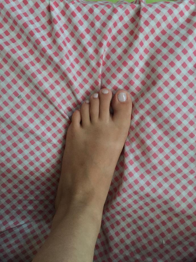 Opinion on my feet?