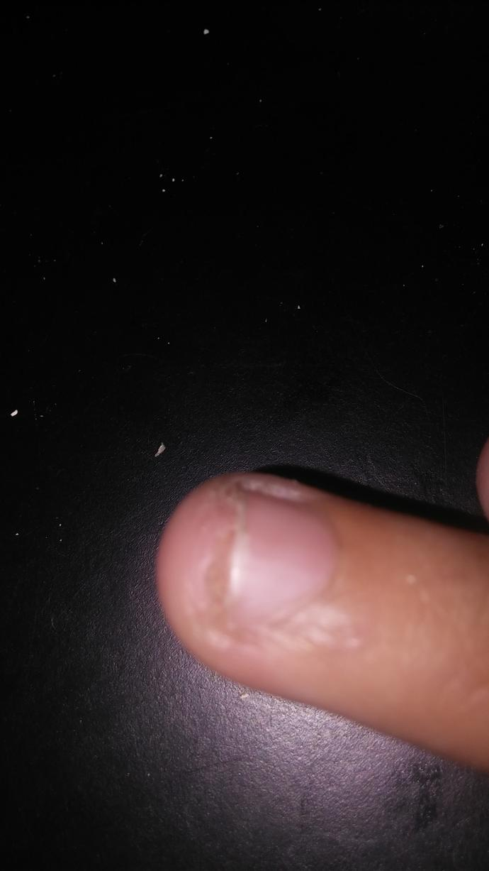 How to fix this nail? The transparent thing bothers me?