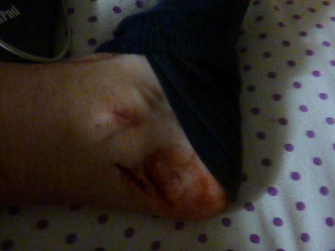 should i get stitches?