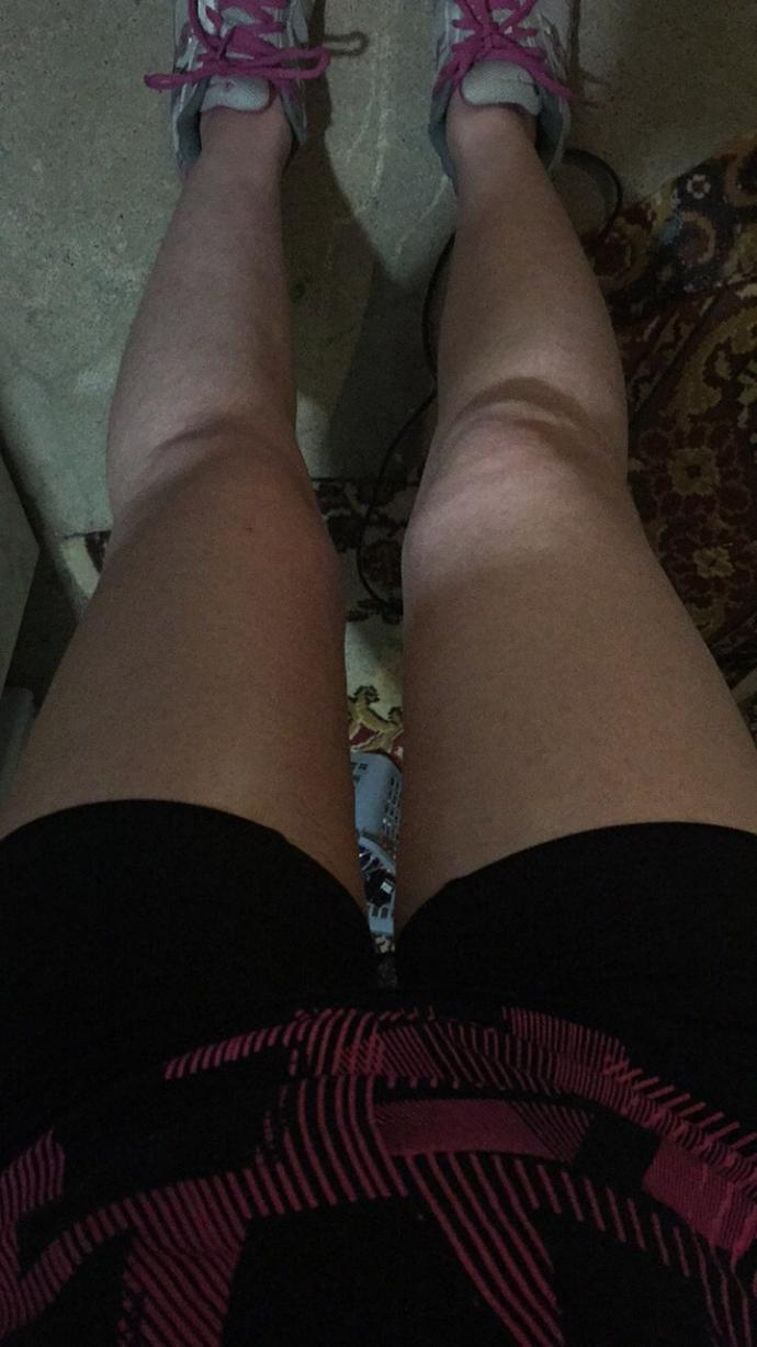 How much work needs to be done to my thighs and legs?
