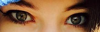 Post a pic of your eyes?