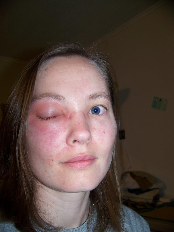 Guys, What would you do if you saw a girl and her eye was like this? What would your reaction be and what would you think?