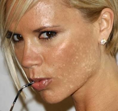 why do Americans have brown marks on their face, look like a disease?