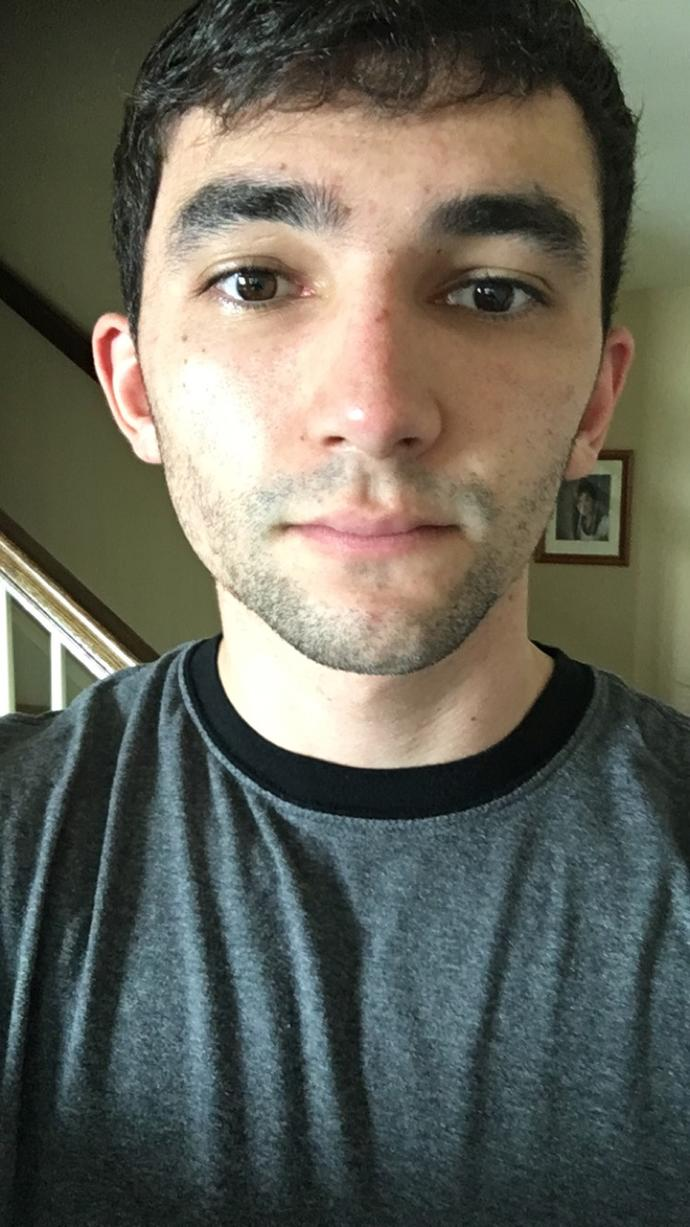 Do you think I should continue trying to grow a beard (Pictures)?