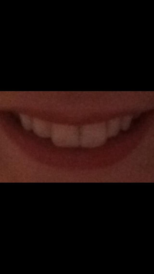 Be honest, do my teeth need straightened?