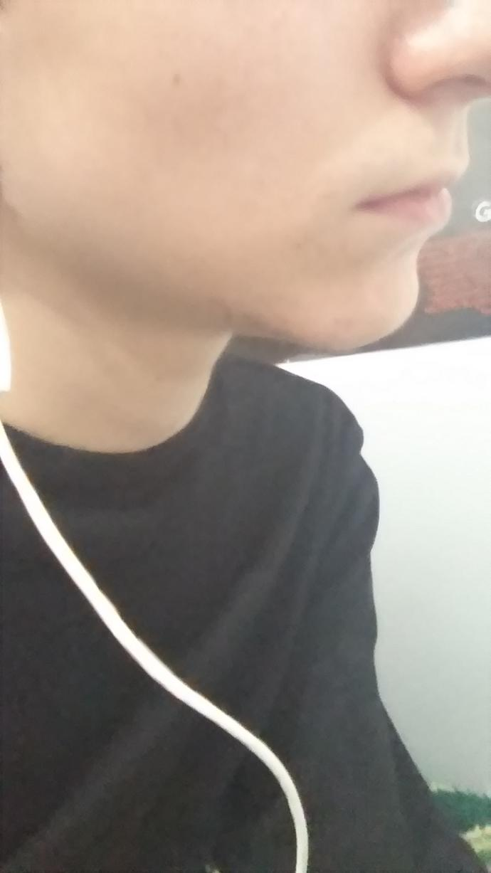 Do you think my chin looks really small or normal?