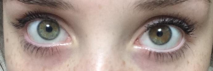 These persons eyes? Picture included?