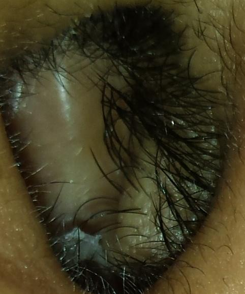 Is my nostril healthy?