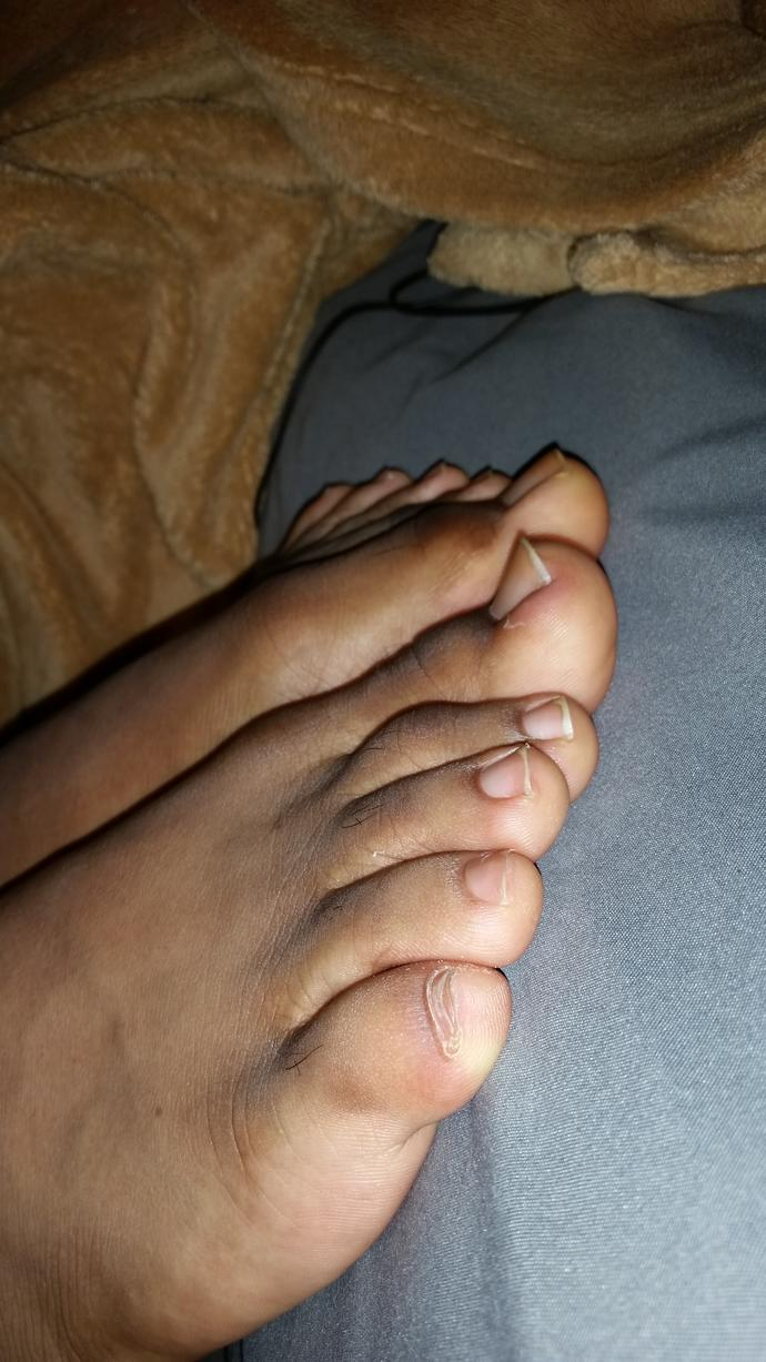 Girls, what guy that you know has nice toes like these?
