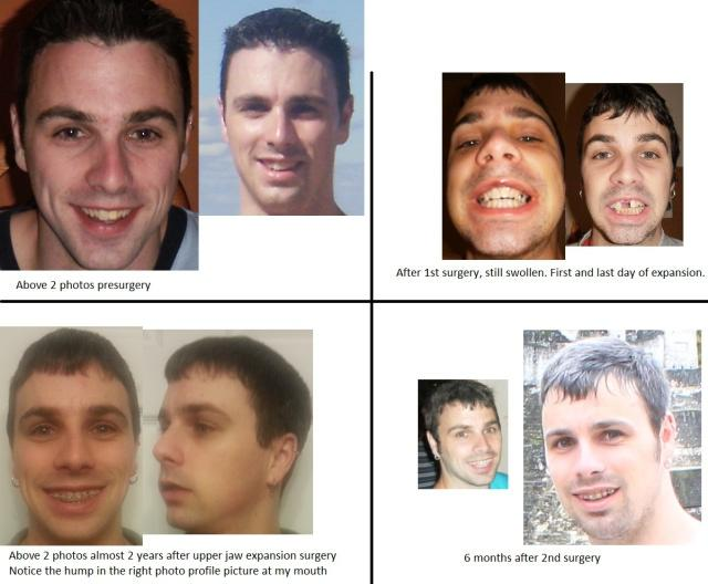 Girl, could u please rate this guy before-after?