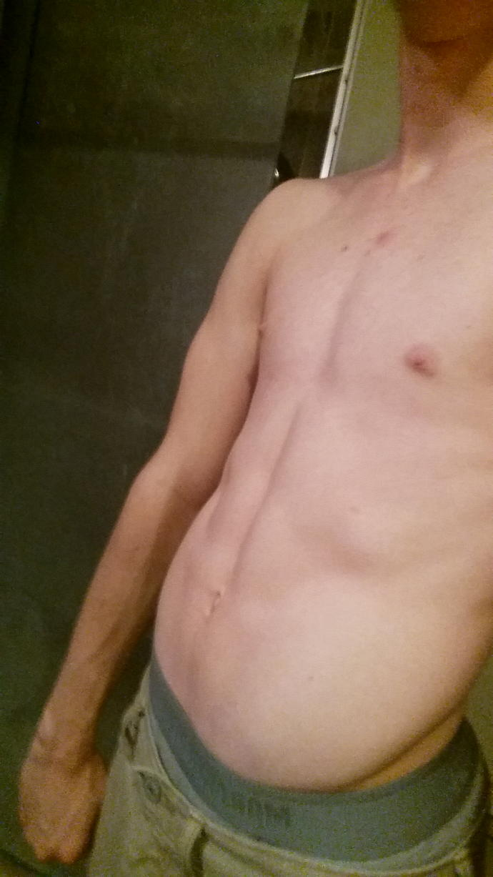 Am I unnatractively skinny? Also, rate out of 10?