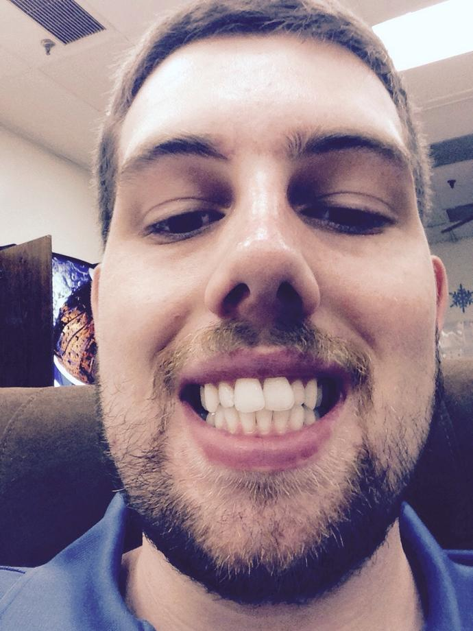 Girls, Do you think my teeth are crooked and unattractive? Should I look into straightening them?