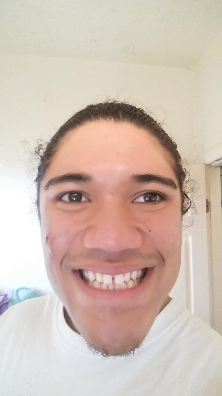 Should I get braces to fix the gap in my teeth? I'm already 22...?