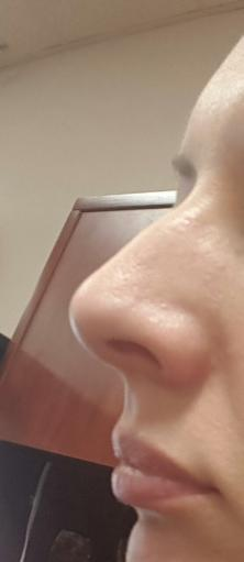 Would this nose on a woman disgust you?