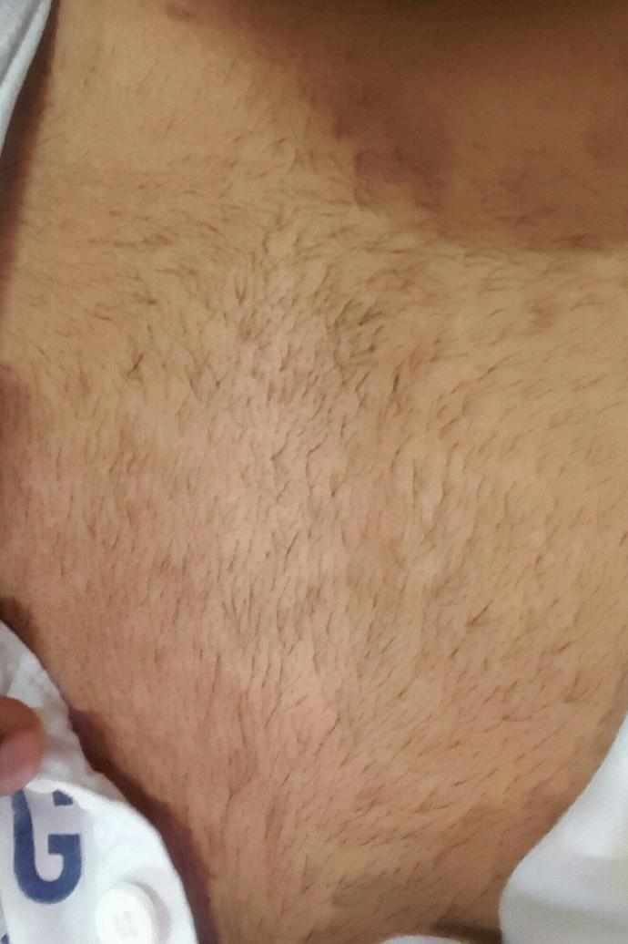 Girls sorry for posting such picture but can u please tell me that are these chest hair appropriate?