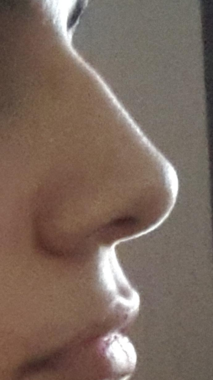 Is my nose ugly?