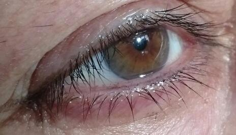 What color is this eye?