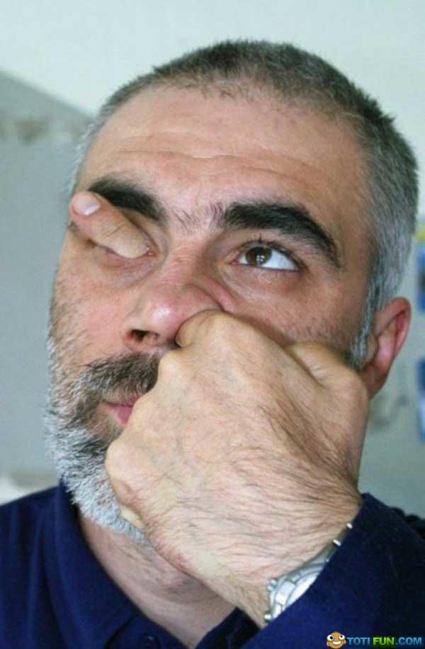 Can you put your finger through your nose and eye like this guy in the pic below?