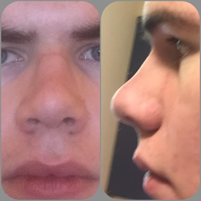 Do you think ONE SINGLE facial feature/defect can make a face unattractive?