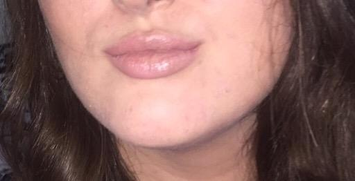 Do guys care about lips?
