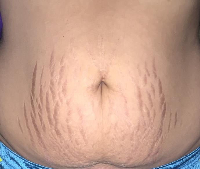 Are my stretch marks a huge turnoff?