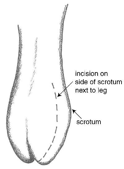 Tight testis to how loose Testicle Massage