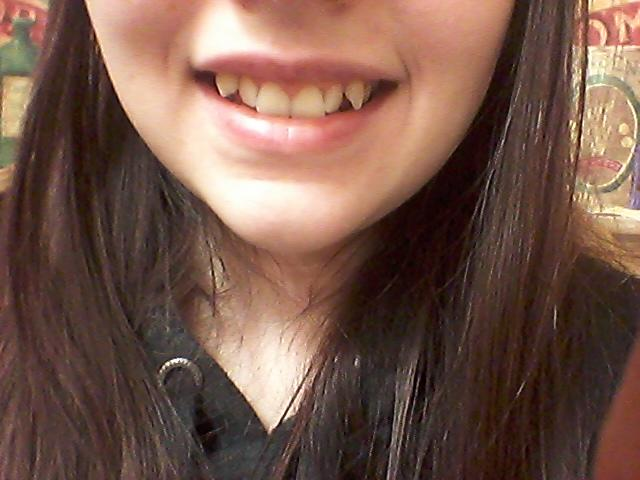 What do you think of these kind of teeth?