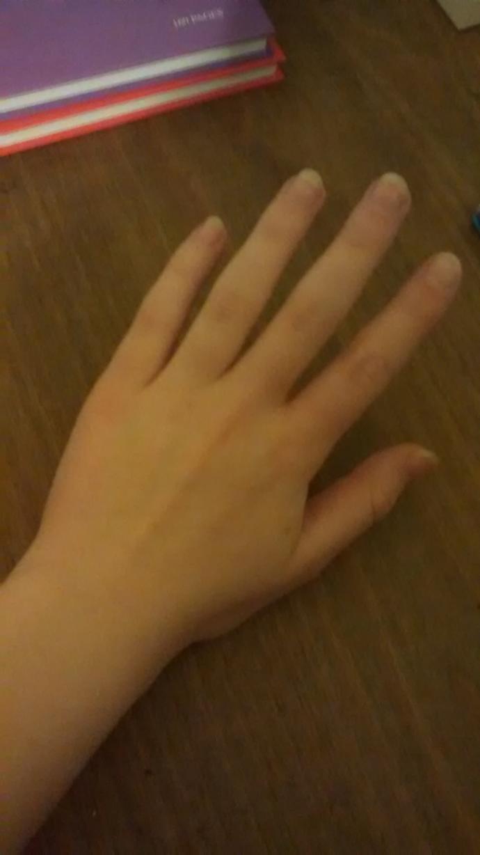 Do I have weird hands?