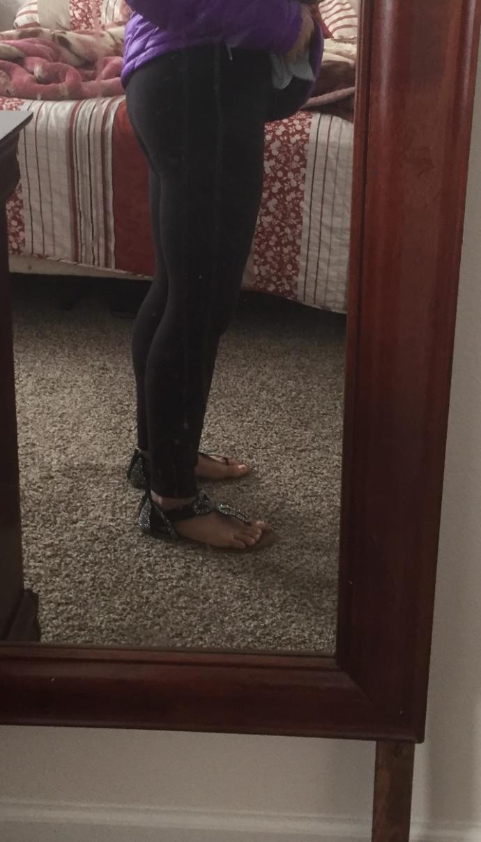Do her legs look bad?