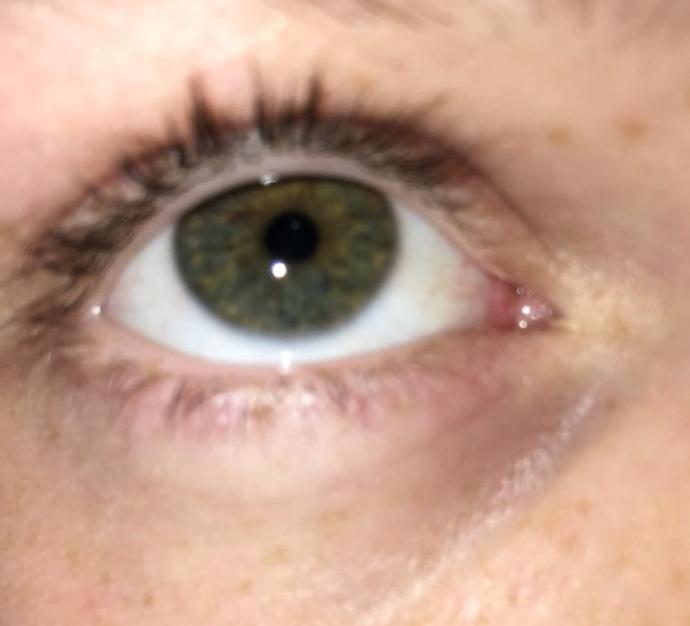 What is my true eye colour?
