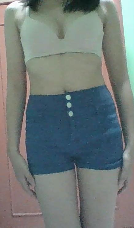 Do I look fat (filler)?