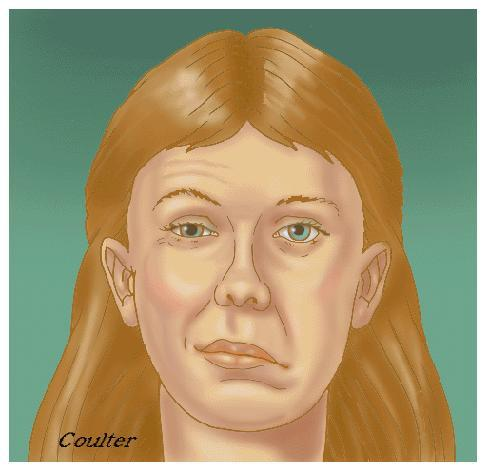 Guys, would you date a girl thats had Bell Palsy and has some facial paralysis as a result?