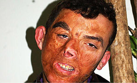 Girls, would you still date a man if his face was seriously burned and was molested as a child or would you reject him?