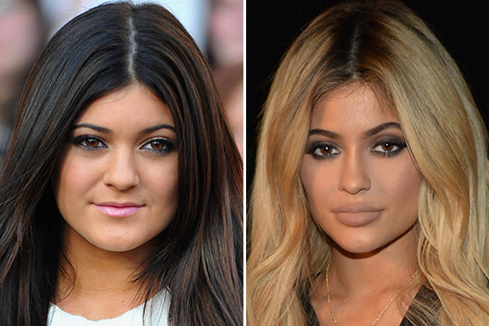 Why Are So Many Girls Getting Lip Injections and Fillers in Their Faces?