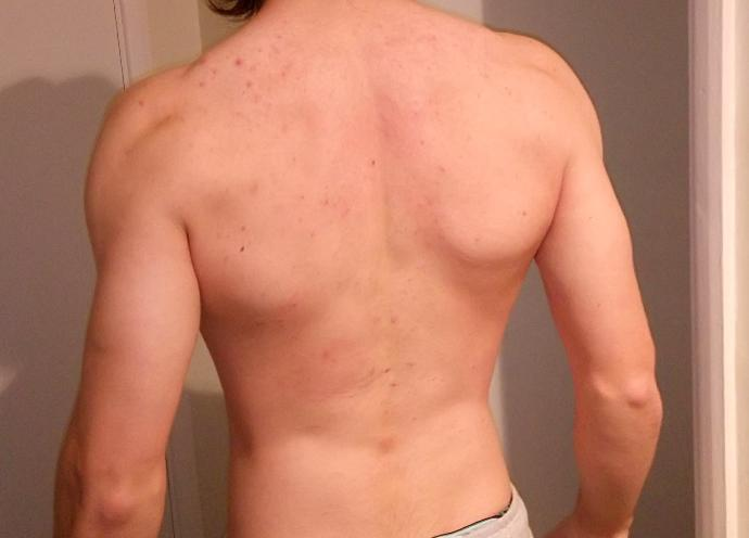 Does my back look good?