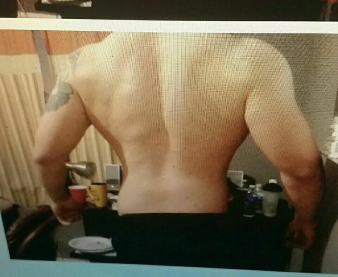 How is my back looking?