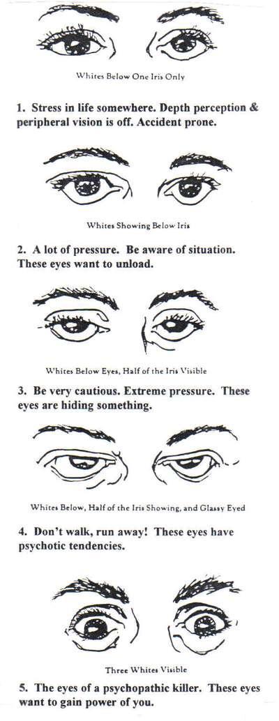 Do you have sanpaku eyes?