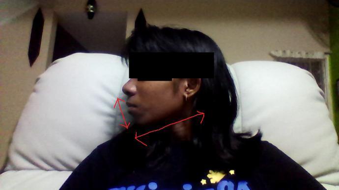 Is my receding chin bad?