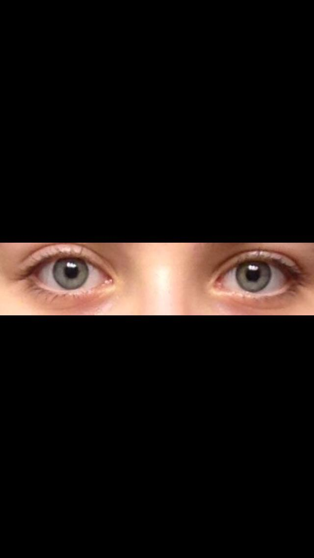 What shape/color are my eyes?