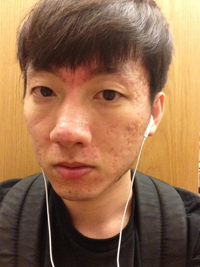 Girls depsite my acne scars will you still L. O. V. E me?