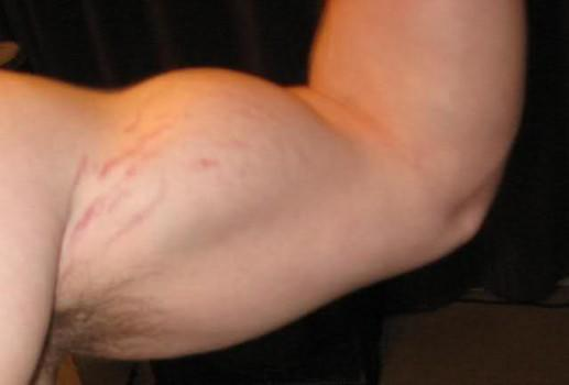 Stretch Marks on a Guy's Biceps?