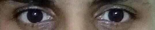 Disregard the lighting and my presently oily skin, would i be safe to assume that the shape of my eyes is similar to these?
