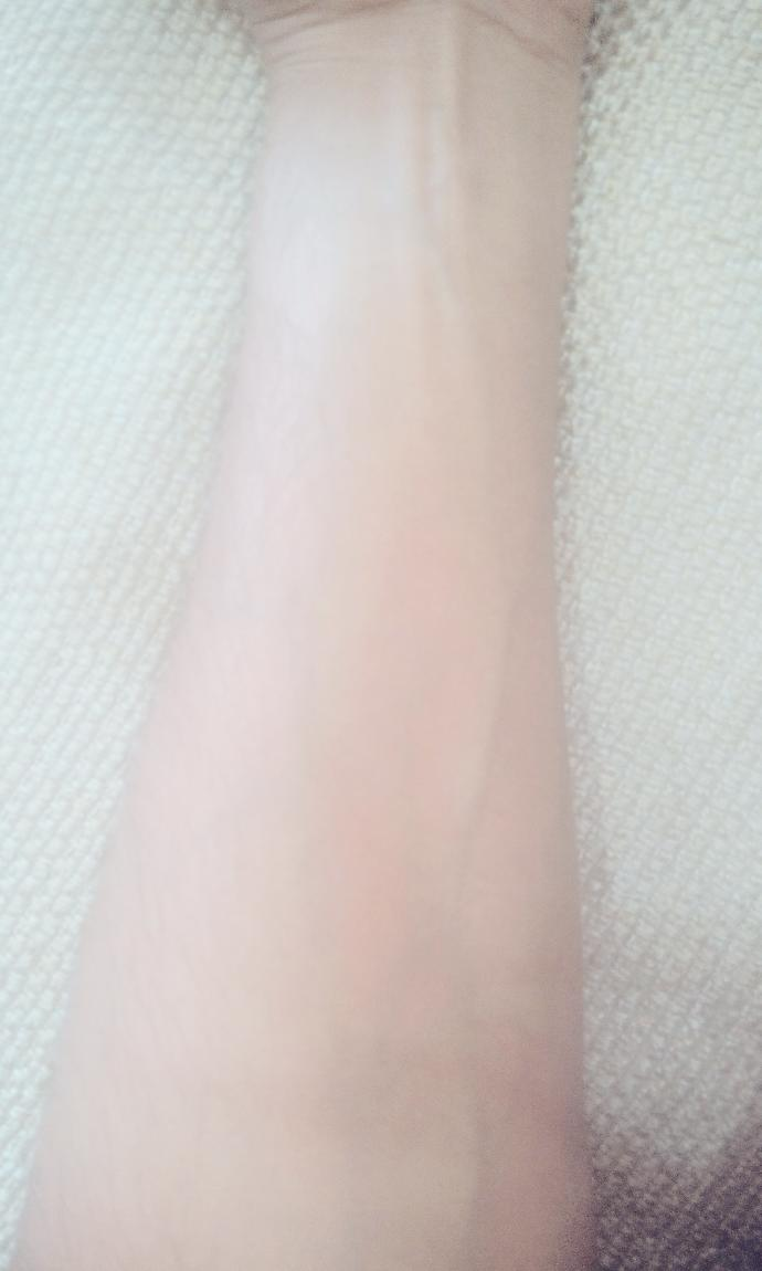 Are these green veins on arm unattractive ?