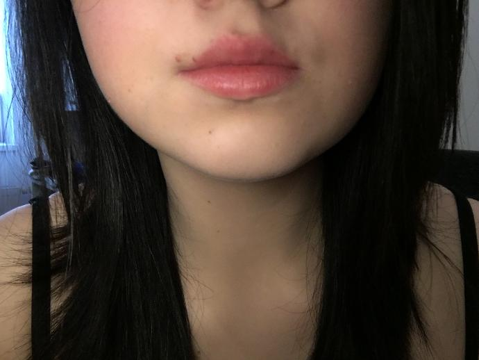 Are my lips too small?