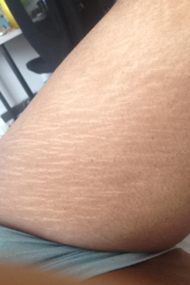 I'm so insecure about my stretch marks, I can't get naked in front of my boyfriend?