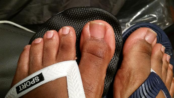 Why is it that MOST guy's don't even take care of their feet and always look ugly, one of the more popular erogenous zones for both men and women?