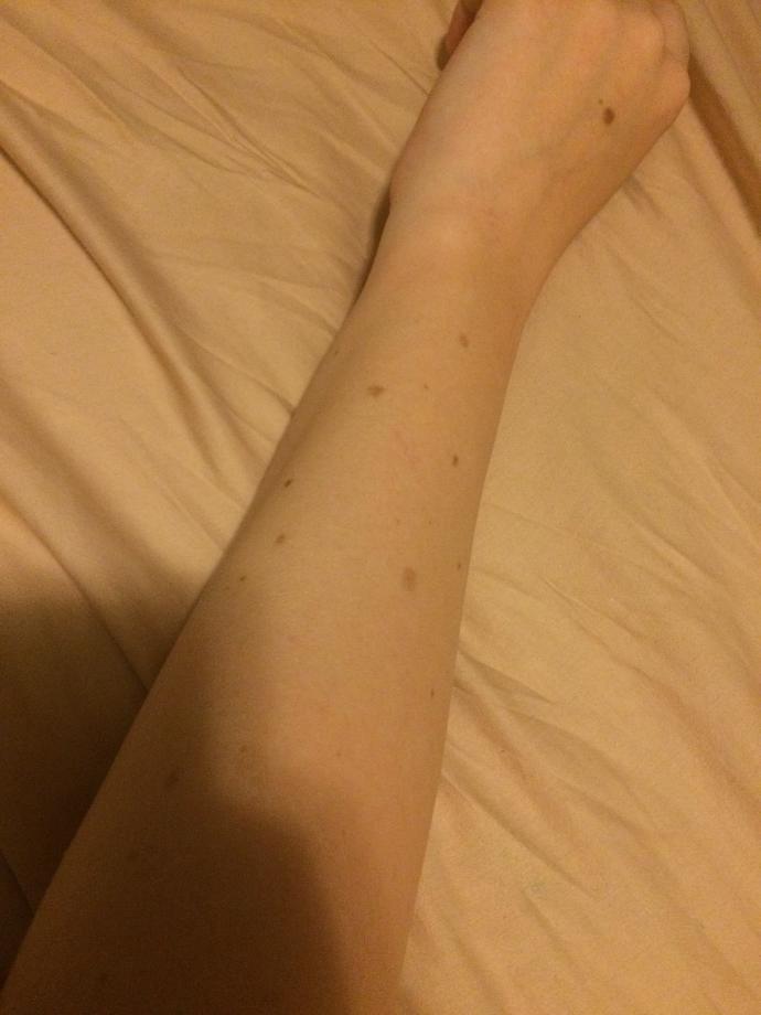 Guys, do you find moles unattractive?