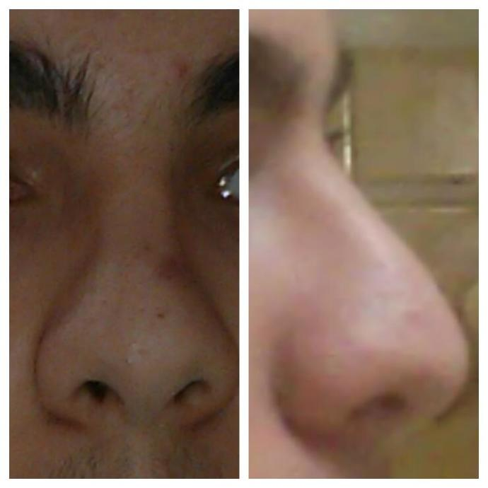 Does my nose look bad?