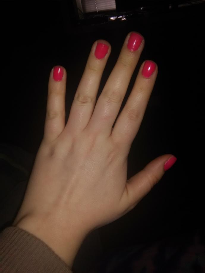Are my hands ugly?