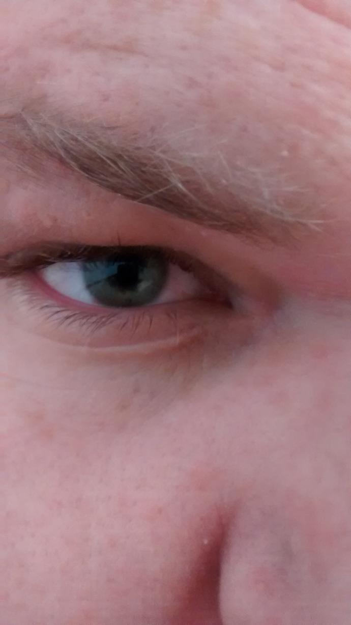 Describe my eye, what do you think?